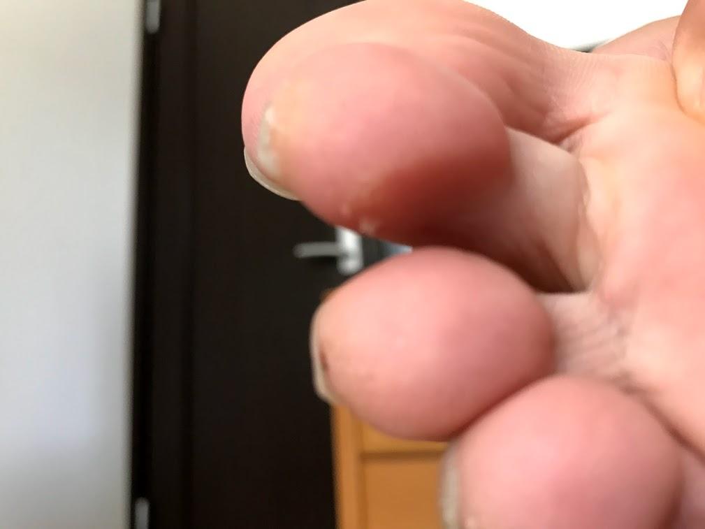 足の指にできたマメ
